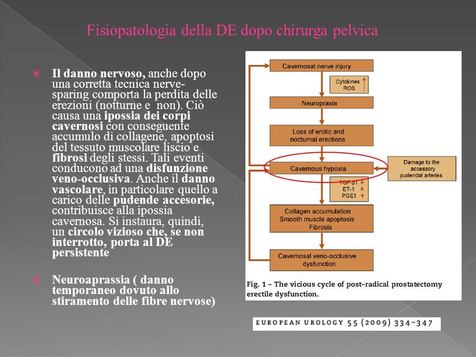 Fisiopatologia della DE dopo chirurga pelvica