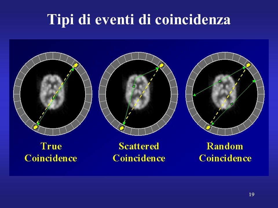 Tipi di eventi di coincidenza