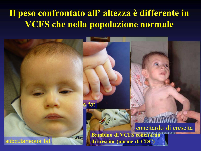 Il peso confrontato all' altezza è differente in VCFS che nella popolazione normale
