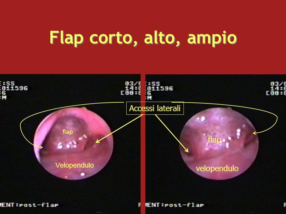 Flap corto, alto, ampio Accessi laterali flap velopendulo Velopendulo