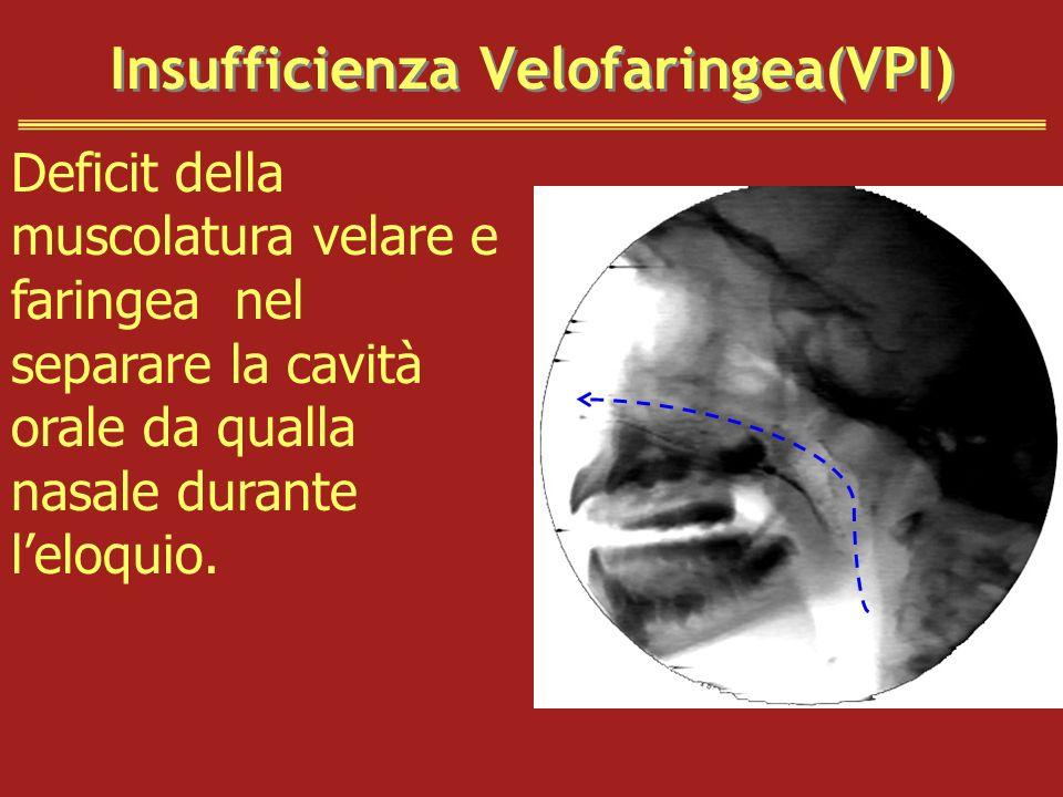 Insufficienza Velofaringea(VPI)