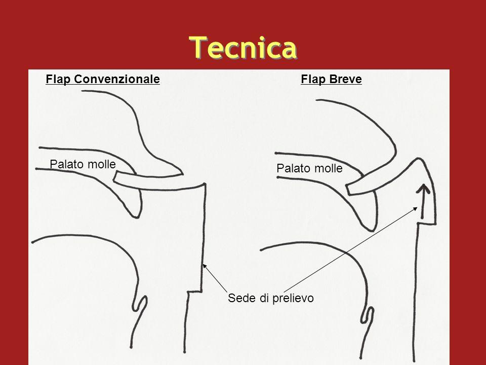 Tecnica Flap Convenzionale Flap Breve Palato molle Palato molle