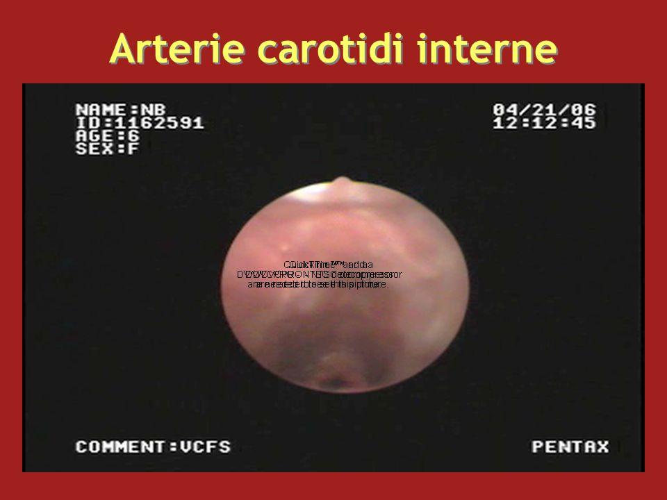 Arterie carotidi interne