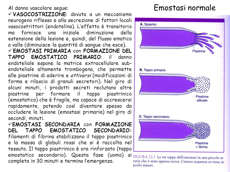 Emostasi normale Al danno vascolare segue: