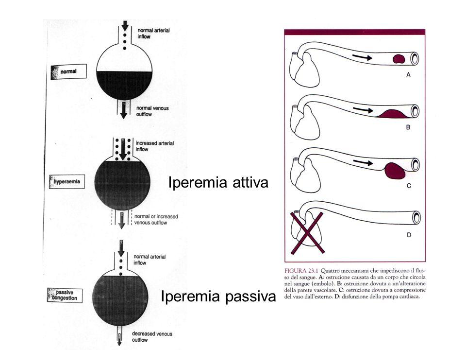 Iperemia attiva Iperemia passiva