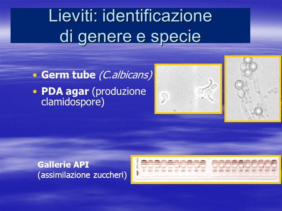 Lieviti: identificazione di genere e specie