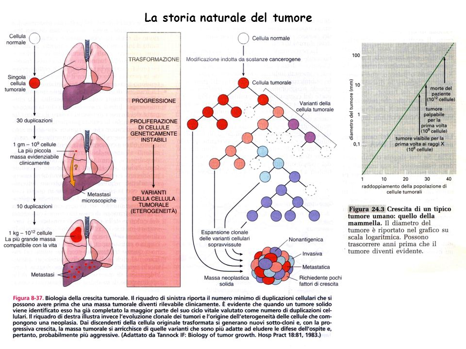 La storia naturale del tumore
