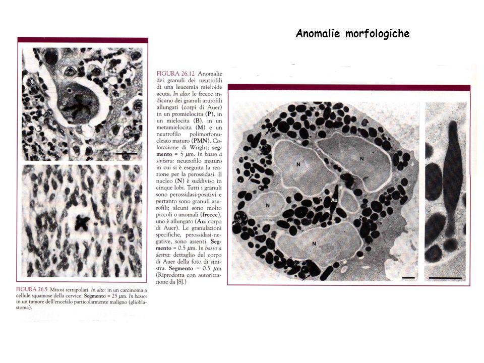 Anomalie morfologiche