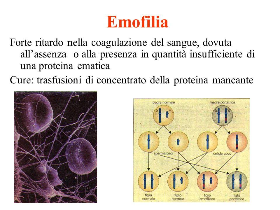 Emofilia Forte ritardo nella coagulazione del sangue, dovuta all'assenza o alla presenza in quantità insufficiente di una proteina ematica.