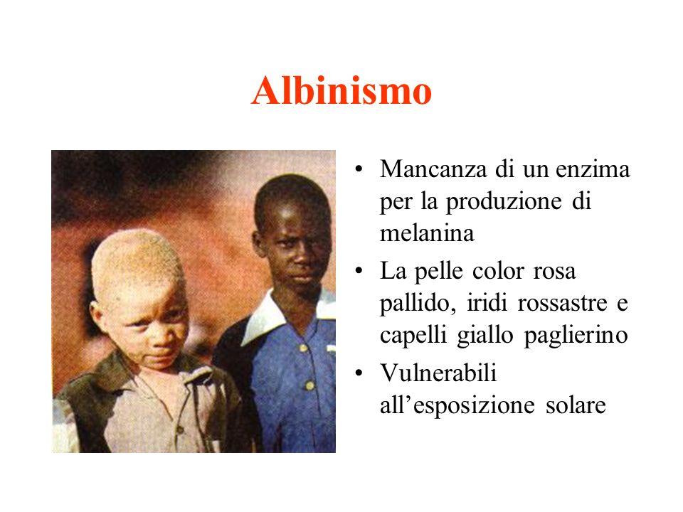 Albinismo Mancanza di un enzima per la produzione di melanina