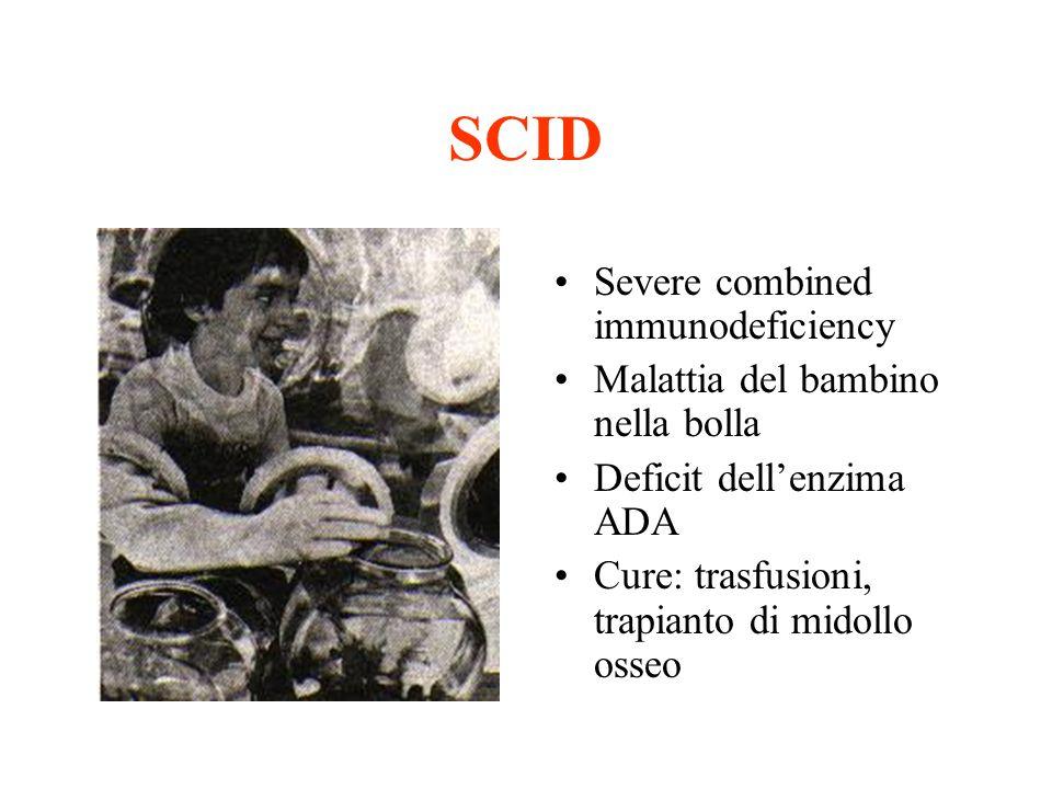 SCID Severe combined immunodeficiency Malattia del bambino nella bolla