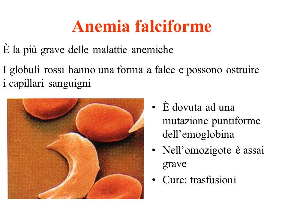 Anemia falciforme È la più grave delle malattie anemiche