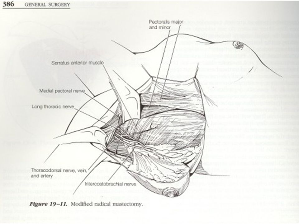 mammella