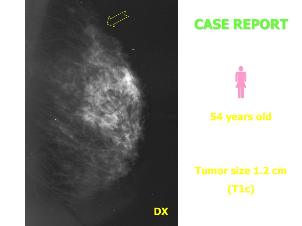 CASE REPORT  54 years old Tumor size 1.2 cm (T1c) DX