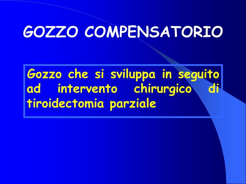 GOZZO COMPENSATORIO Gozzo che si sviluppa in seguito ad intervento chirurgico di tiroidectomia parziale.