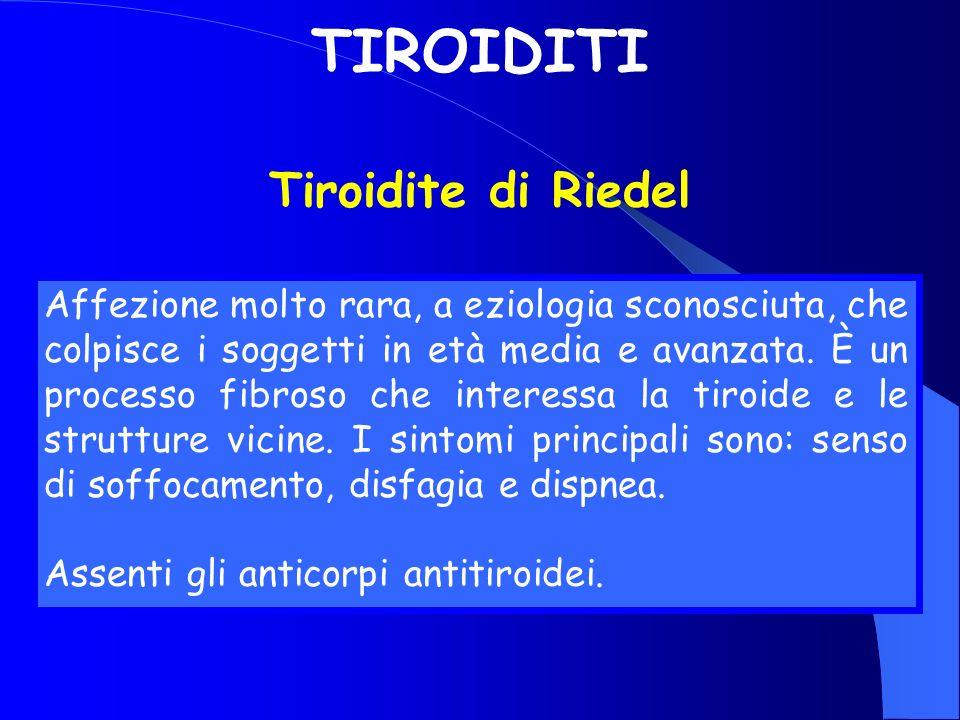 TIROIDITI Tiroidite di Riedel