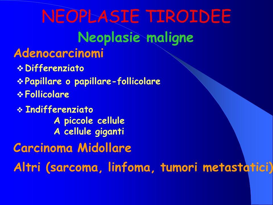 NEOPLASIE TIROIDEE Neoplasie maligne Adenocarcinomi