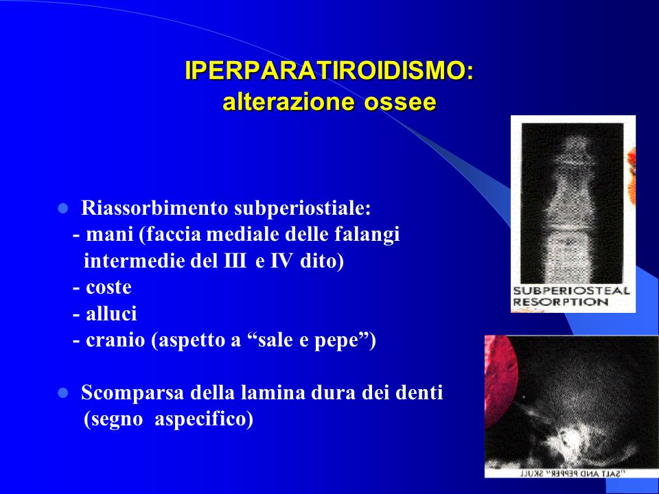 IPERPARATIROIDISMO: alterazione ossee
