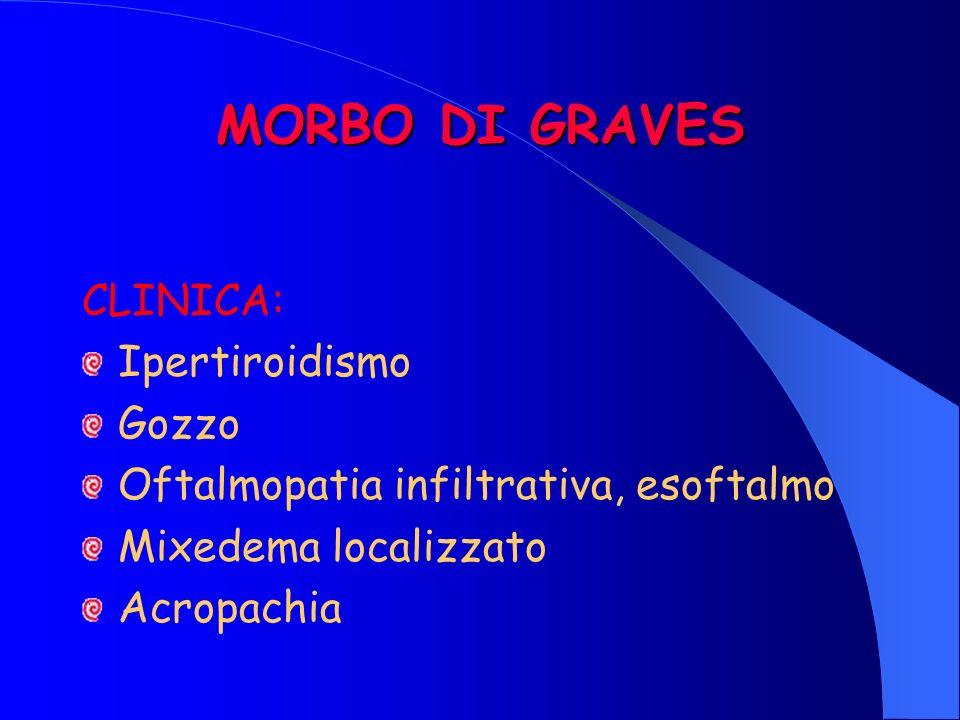 MORBO DI GRAVES CLINICA: Ipertiroidismo Gozzo