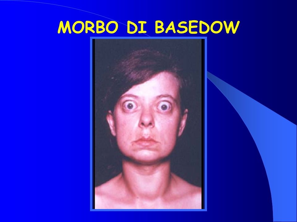 MORBO DI BASEDOW