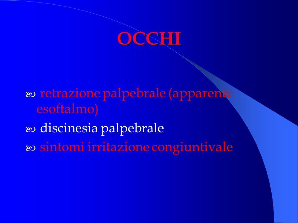 OCCHI retrazione palpebrale (apparente esoftalmo)