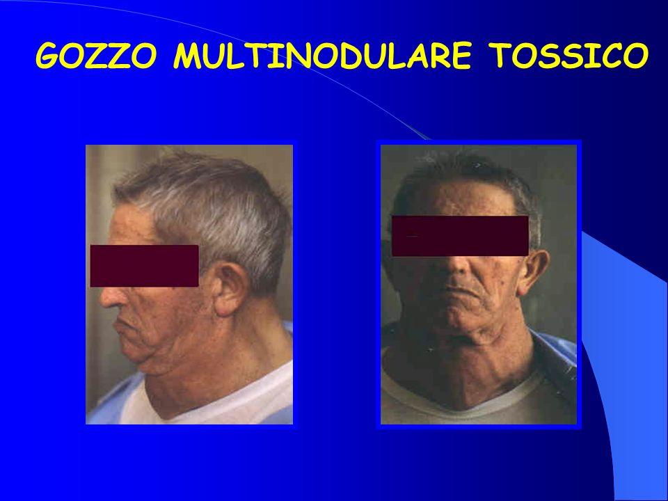 GOZZO MULTINODULARE TOSSICO