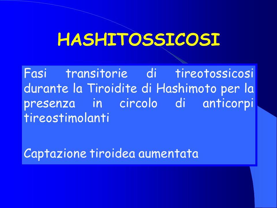 HASHITOSSICOSI Fasi transitorie di tireotossicosi durante la Tiroidite di Hashimoto per la presenza in circolo di anticorpi tireostimolanti.