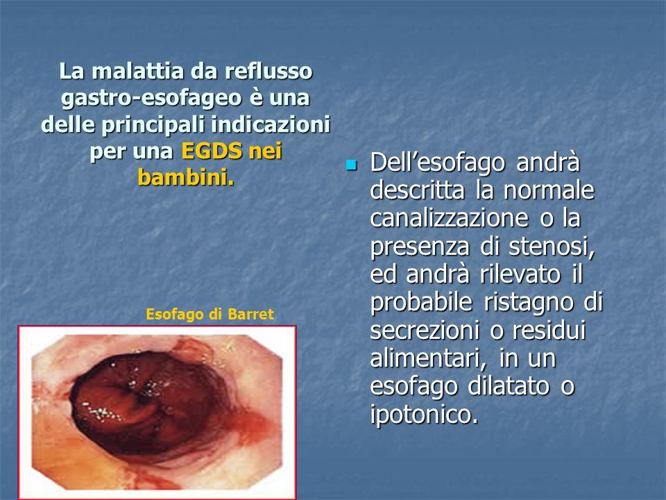 La malattia da reflusso gastro-esofageo è una delle principali indicazioni per una EGDS nei bambini.