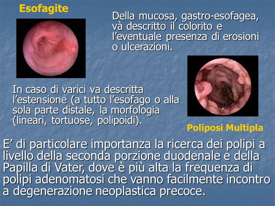 EsofagiteDella mucosa, gastro-esofagea, và descritto il colorito e l'eventuale presenza di erosioni o ulcerazioni.
