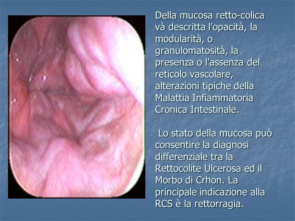 Della mucosa retto-colica và descritta l'opacità, la modularità, o granulomatosità, la presenza o l'assenza del reticolo vascolare, alterazioni tipiche della Malattia Infiammatoria Cronica Intestinale.