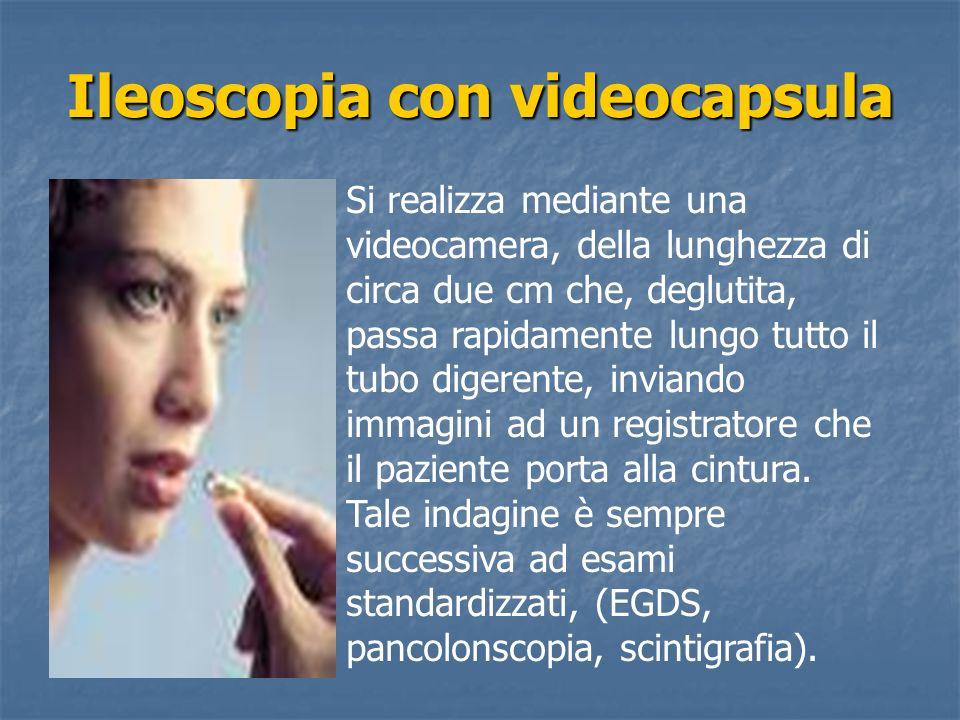 Ileoscopia con videocapsula