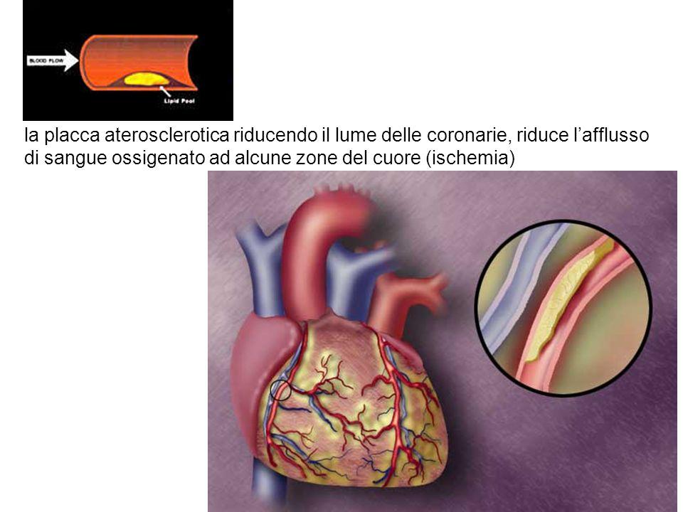 la placca aterosclerotica riducendo il lume delle coronarie, riduce l'afflusso di sangue ossigenato ad alcune zone del cuore (ischemia)