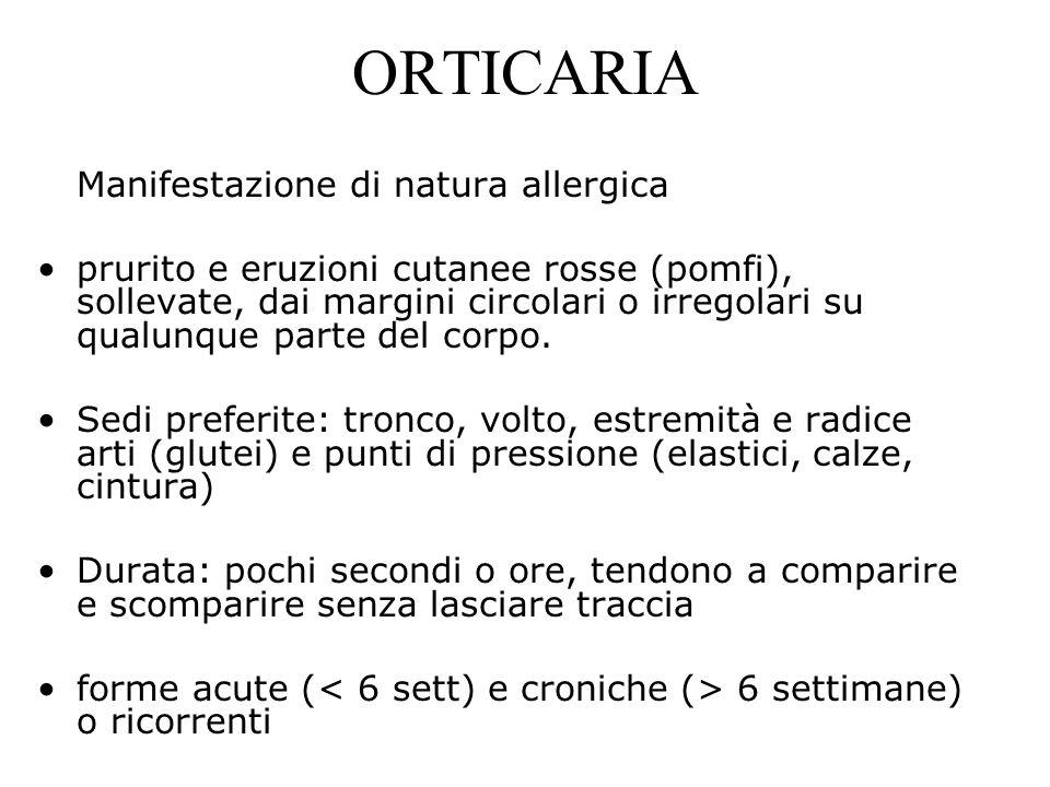 ORTICARIA Manifestazione di natura allergica