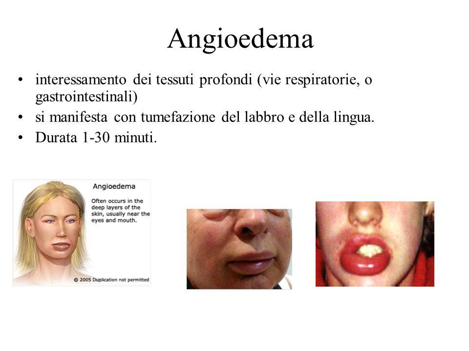 Angioedema interessamento dei tessuti profondi (vie respiratorie, o gastrointestinali) si manifesta con tumefazione del labbro e della lingua.