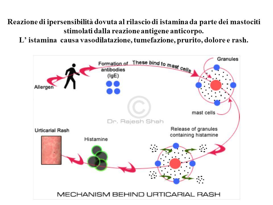 Reazione di ipersensibilità dovuta al rilascio di istamina da parte dei mastociti stimolati dalla reazione antigene anticorpo.