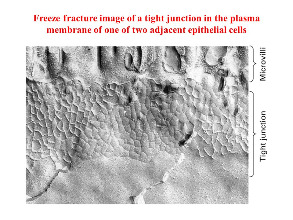 Freeze fracture image of a tight junction in the plasma membrane of one of two adjacent epithelial cells