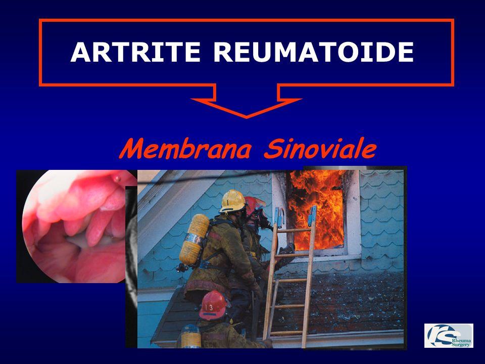 ARTRITE REUMATOIDE Membrana Sinoviale