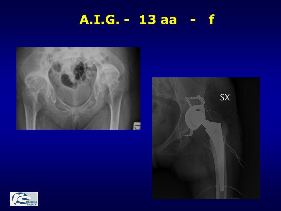 A.I.G. - 13 aa - f