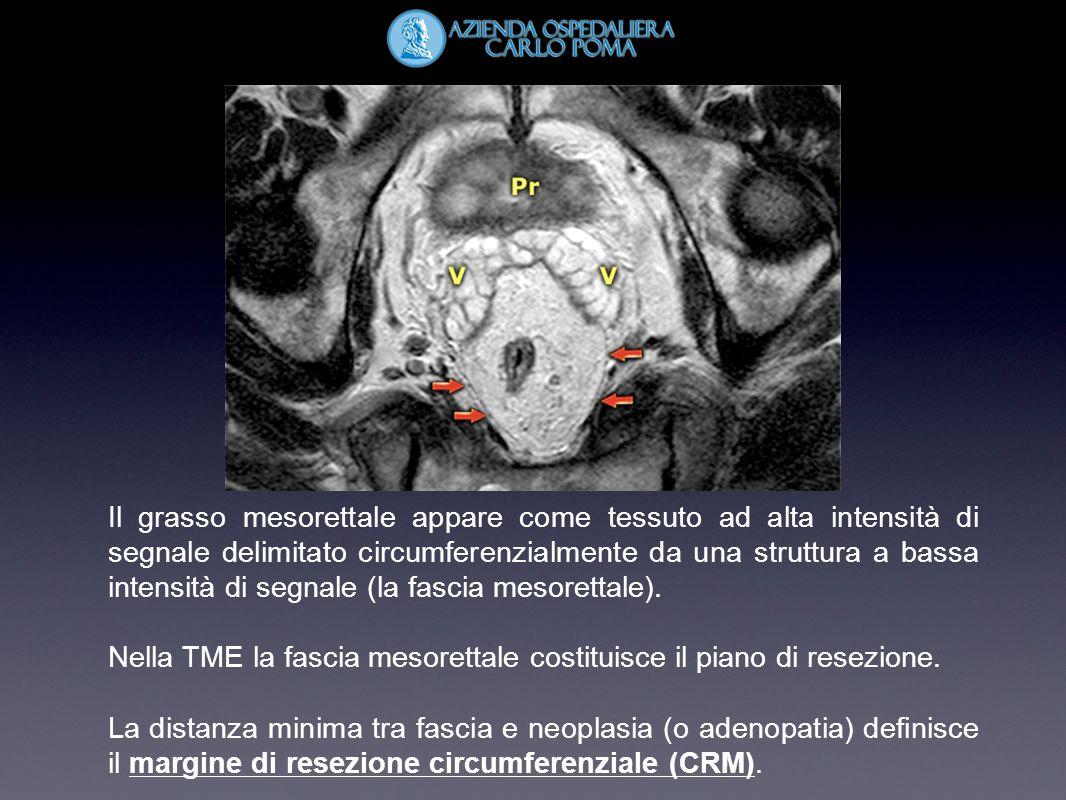Il grasso mesorettale appare come tessuto ad alta intensità di segnale delimitato circumferenzialmente da una struttura a bassa intensità di segnale (la fascia mesorettale).