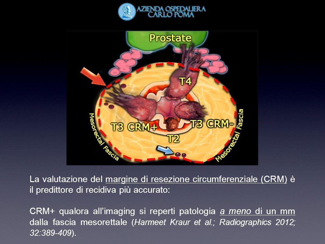 La valutazione del margine di resezione circumferenziale (CRM) è il predittore di recidiva più accurato: