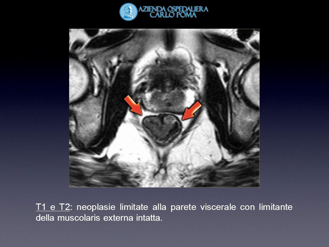 T1 e T2: neoplasie limitate alla parete viscerale con limitante della muscolaris externa intatta.