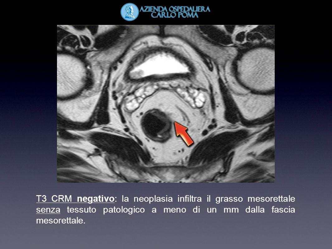 T3 CRM negativo: la neoplasia infiltra il grasso mesorettale senza tessuto patologico a meno di un mm dalla fascia mesorettale.