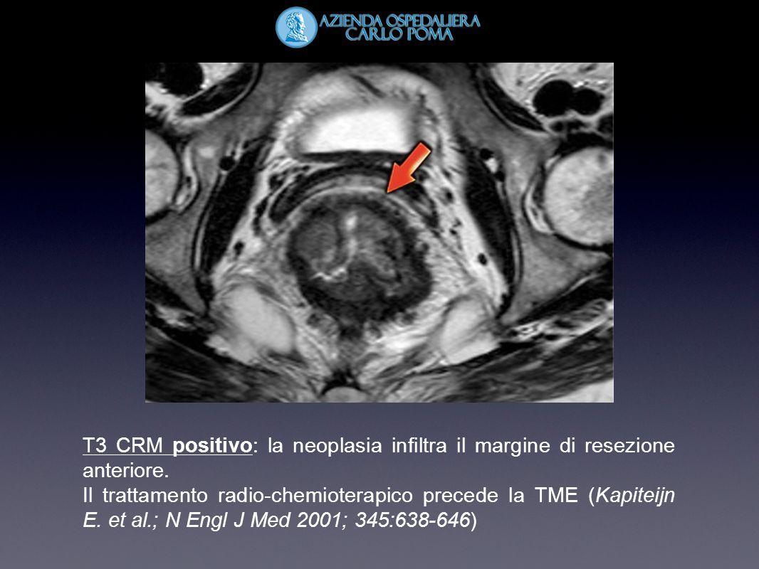 T3 CRM positivo: la neoplasia infiltra il margine di resezione anteriore.