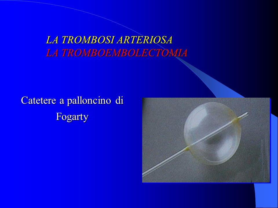 Catetere a palloncino di Fogarty