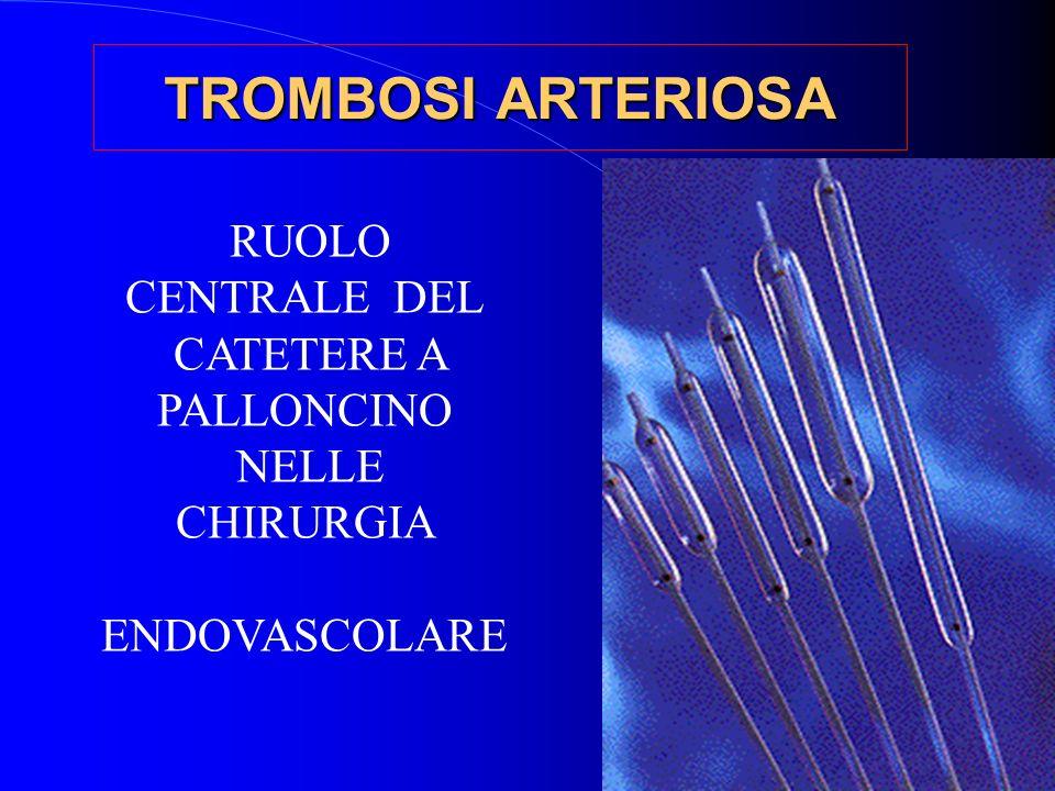 TROMBOSI ARTERIOSA RUOLO CENTRALE DEL CATETERE A PALLONCINO