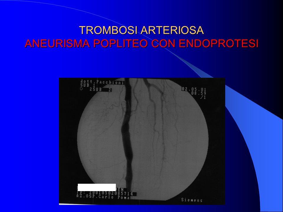 TROMBOSI ARTERIOSA ANEURISMA POPLITEO CON ENDOPROTESI