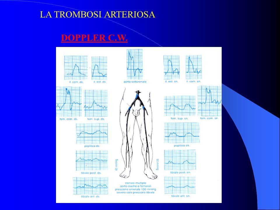 LA TROMBOSI ARTERIOSA DOPPLER C.W.