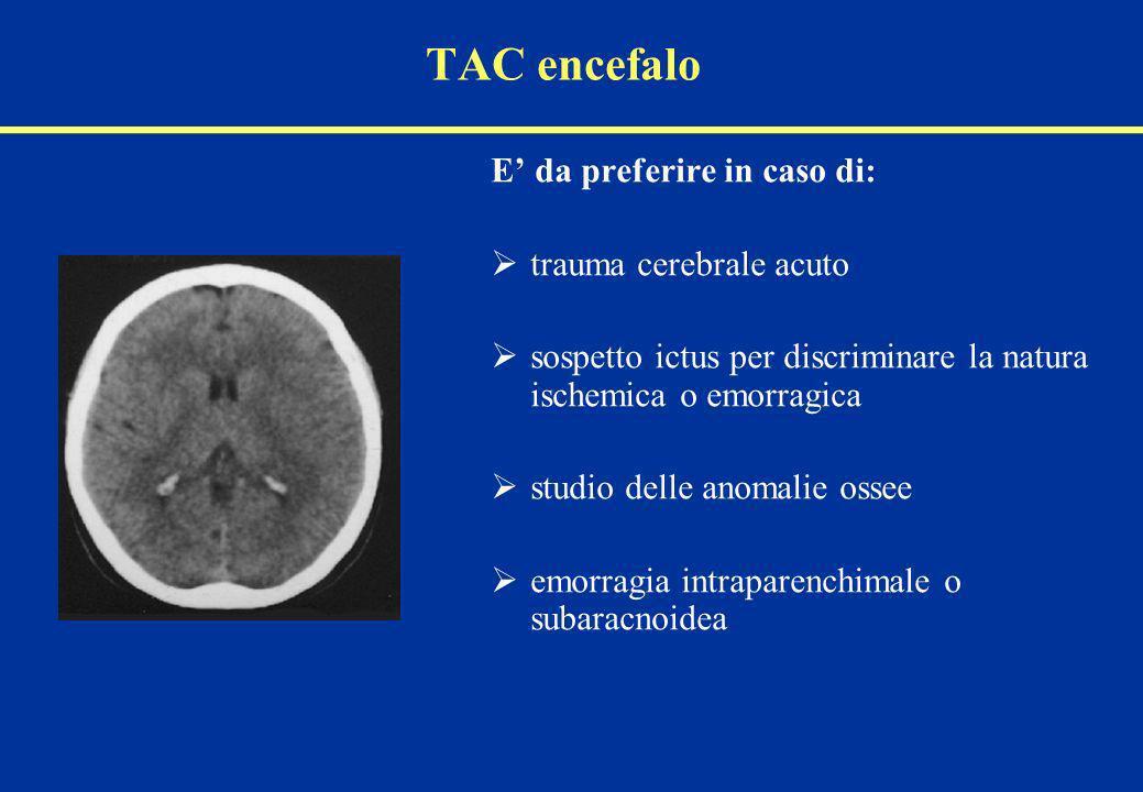 TAC encefalo E' da preferire in caso di: trauma cerebrale acuto