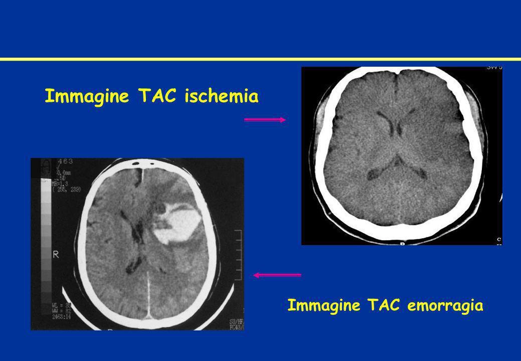 Immagine TAC emorragia