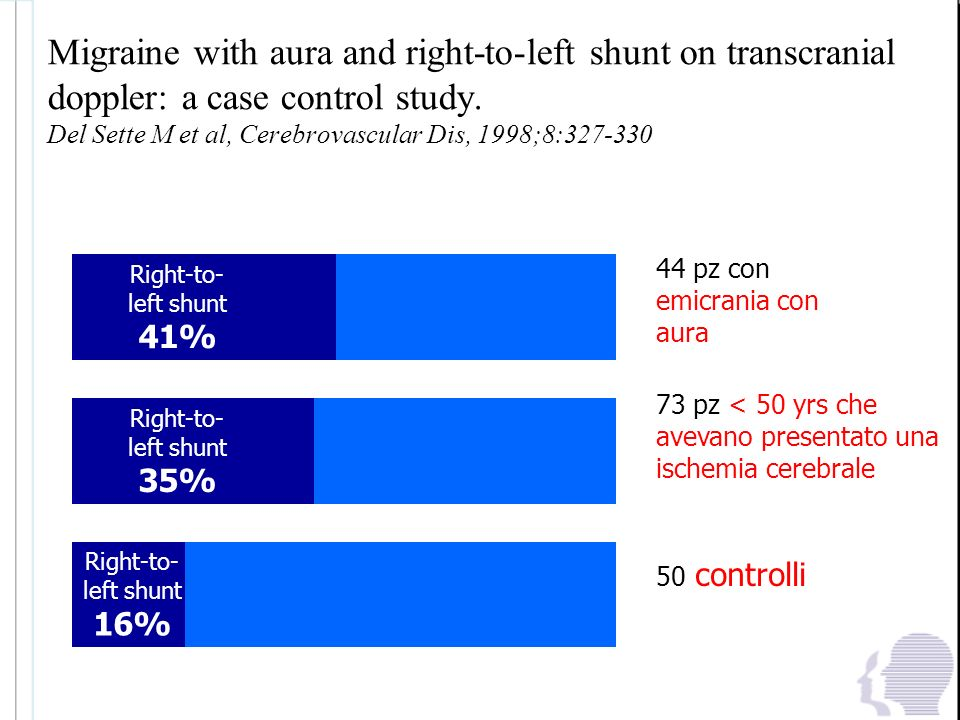 Migraine with aura and right-to-left shunt on transcranial doppler: a case control study. Del Sette M et al, Cerebrovascular Dis, 1998;8:327-330
